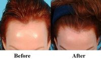 before and after biotin for hair loss
