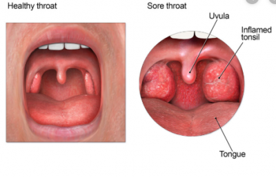 healthy and sore throat
