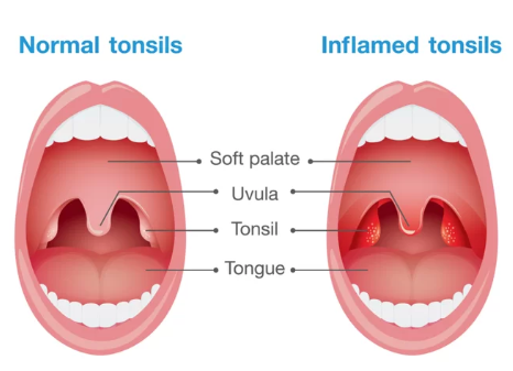 normal and inflamed tonsils