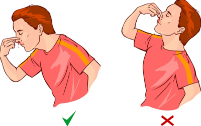 how to stop nosebleed