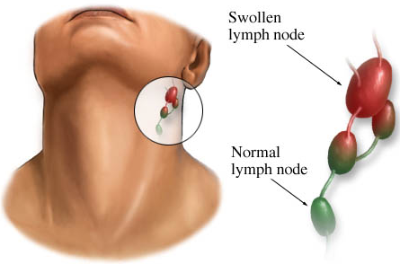 normal and swollen lymph nodes